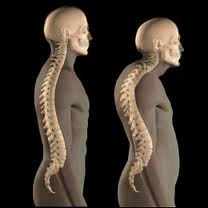 Herbal, Natural, Home Remedies for Osteoporosis